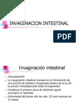 Invaginacion Intestinal