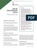 06.002 Artritis reumatoide (II). Manifestaciones clínicas