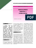 Radiculopatia Cervical
