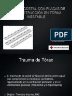 Torax Inestable Caso Clinico
