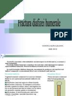 28511673 Fractura de Diafiza Humerala