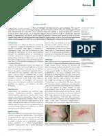 Angiosacroma.pdf