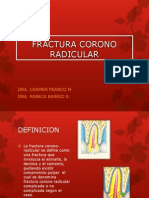 Fractura Corono Radicular