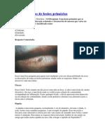 Características de lesões - semiologia
