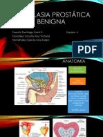 HPB mas Ca de prostata (1).pptx