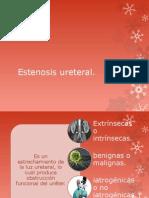 Estenosis Ureteral y Uretral
