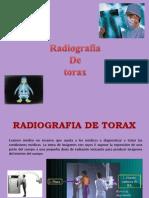 radiografía tórax normal GRACE CONHA