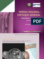 hernia-inguinal (1).ppt