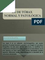 11 Rx torax