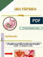 Úlcera Péptica mio