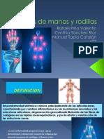 Artritis de Manos y Rodillas