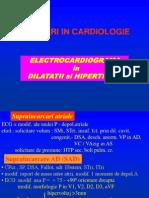 Curs ECG Hipertrofii +Ischemie+Leziune+Necroza_2012