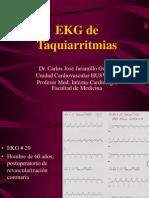 EKG Taquiarritmias