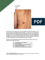 Ejercicio de diagnóstico diferencial N°21 (150313).docx
