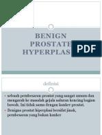 Benign prostate hyperplasi