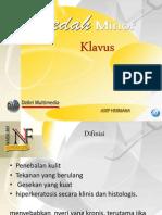 bedahminoreksisiclavus-130529012909-phpapp02