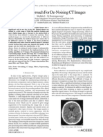 A Novel Approach For De-Noising CT Images