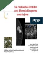 tumorapocrinomama2