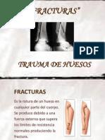 FRACTURAS - SEMINARIO.pptx