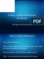 Casey, a child with Down  Syndrome