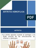ARTRITIS HEMOFILICA