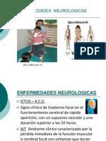 5. Rehab. Paciente Hemiplejico