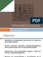 Pericarditis 110920105359 Phpapp01