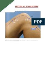 Ulcera Gastrica y Acupuntura
