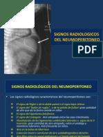 Signos Radiologicos Del Neumoperitoneo