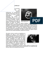 Micosis ocular postraumática por