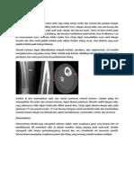 osteoid osteoma