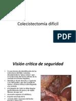 Colecistectomia dificil.pptx