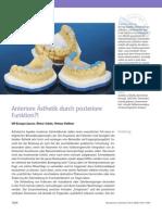 Case_Report_Anteriore_Aesthetik_durch_posteriore_Funktion_Zahnarzt_Ulf_Krueger_Janson_Frankfurt.pdf
