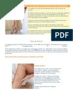 Todo Sobre Las Varices y Los Mejores Tratamientos Para Prevenirlas