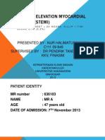 St Sement Elevation Myocardial Infarction (Stemi)