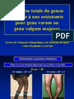 PTG  Ostéotomie