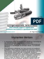 Implante Dentario Londrina