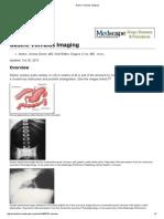 Gastric Volvulus Imaging