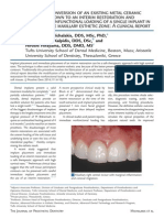 Conversion of an Existing Metal Ceramic Crown to an Interim Restoration and Nonfunctional Loading of a Single Implant in t