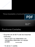 Torax Inestable y Contusion Pulmonar