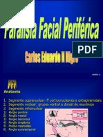 Paralisia+Facial+Periférica