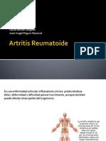 Artritis Reumatoide Laura