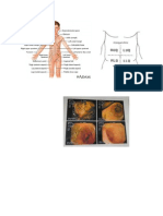 Print Gambar Tumor Abdomen