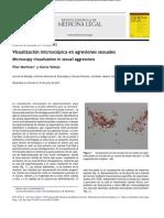 Visualizac Microcop en Agres Sex