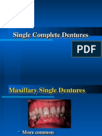 Single Complete Denture