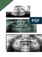 Formación diente