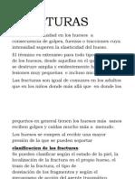 FRACTURAS PERIODICO