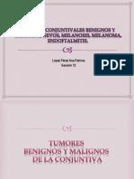 Tumores Conjuntivales Benignos y Malignos, Nevos,
