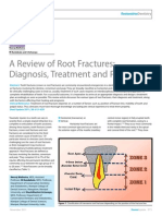 A Review of Root Fractures- Final Print
