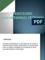Bypass Aortofemural
